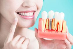 Understanding the Benefits of Dental Implants