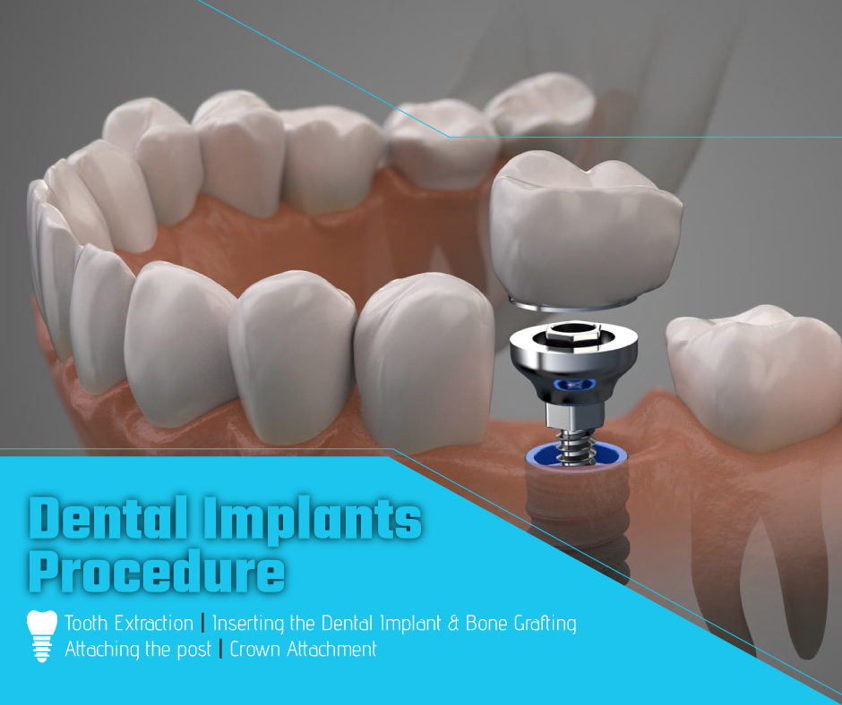 Dental Implants - The Procedure and How They Work